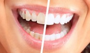 Indicatii albire dentara