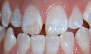 Fluoroza dentara