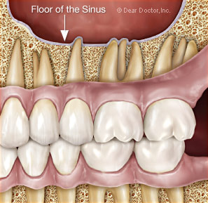 Sinuzita maxilara dentara
