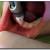 VIDEO. Anestezia plexala la maxilar si mandibula