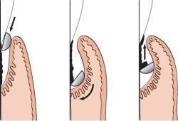 Lista de preturi - Implanturi dentare, chirurgie, ortodontie - bekkolektiv.com