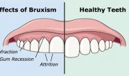 Tratament Bruxism