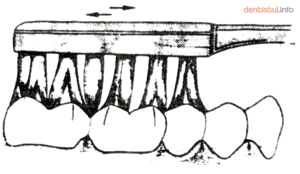 Tehnica Bass - Periaj ocluzal