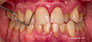 parodontita juvenila