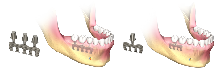 implant dentar lama